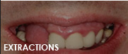extractions dentist fresno ca