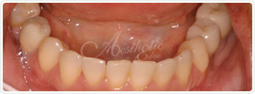 teeth whitening fresno ca