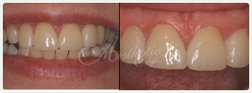 Before and after Dentist Fresno