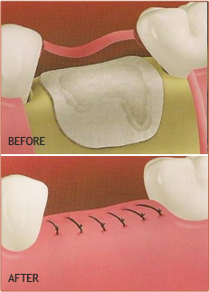 Extrations and bone grafts Fresno CA