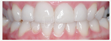 teeth whitening fresno