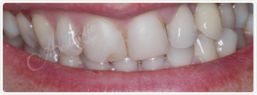 teeth whitening dentistry fresno